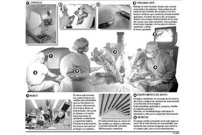El primer robot Da Vinci, instalado en la Fundación Puigvert de Barcelona, asiste al cirujano en operaciones de próstata.