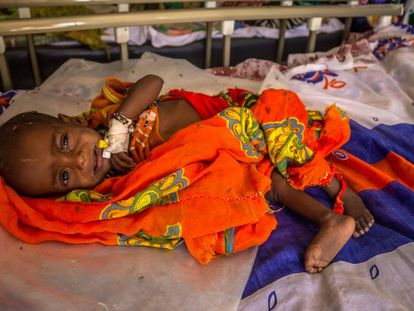 Un niño ingresado en la unidad de desnutrición de Liwa, en la región del Lago Chad (Chad).