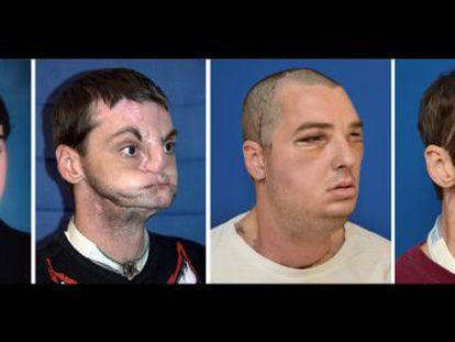 Evolución favorable de Richard Norris sometido a un trasplante de cara completo en EE UU hace siete meses.