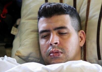 Sofiane, un solicitante de asilo, también se ha cosido los labios para reclamar acceso a trabajo y atención médica al Gobierno belga.