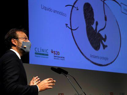 El director general de BCNatal, Eduard Gratacós, durante la presentación del proyecto de creación de una placenta artificial para salvar a bebés prematuros