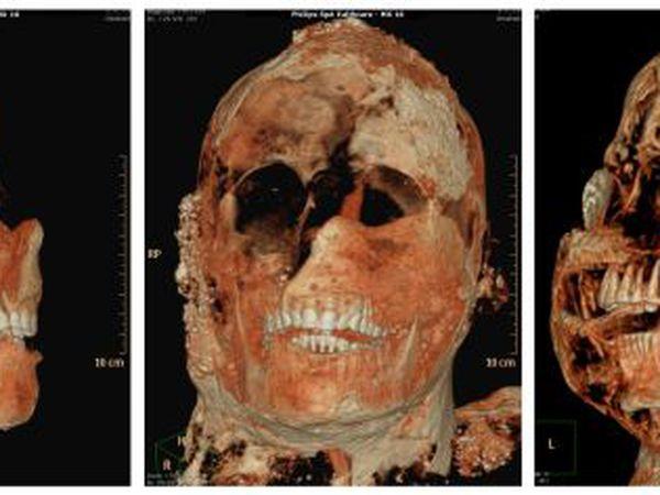 Una tomografía axial computarizada de una de las momias de Pompeya.