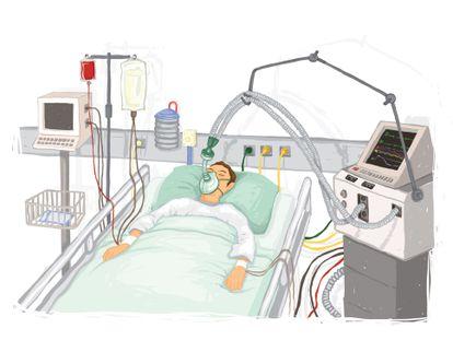Dibujo de un paciente con asistencia respiratoria