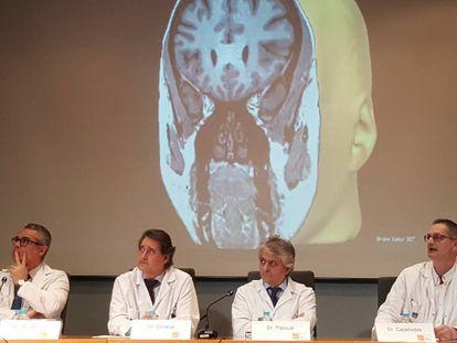 Los doctores Rodrigo Rocamora, Gerard Conesa, Julio Pascual y Jaume Capellades en la presentación de la ablación láser
