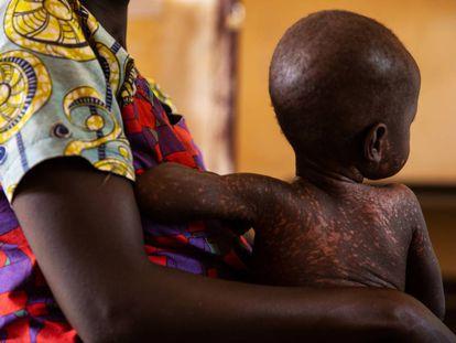 Desde principios de este año, República Centroafricana sufre una epidemia de sarampión, una enfermedad prevenible con vacuna.