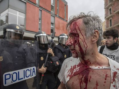 Un herido en las cargas en la escuela Mediterránea de Barcelona el 1-O.