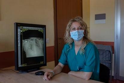 La doctora Annalisa Malara realizó el primer diagnosticó de covid-19 en Italia. En la foto, junto a una radiografía de un enfermo de coronavirus.