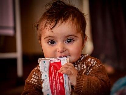 La mayoría de los niños desplazados internamente en Afganistán sufren desnutrición grave debido a la falta de alimentos adecuados.