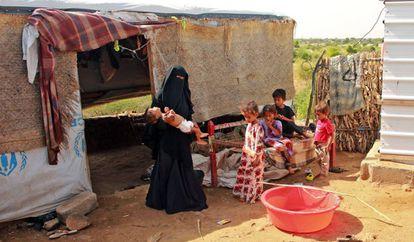 Hashem Mahmoud Atin, un niño yemení desplazado de diez meses que sufre de desnutrición aguda y que no puede llegar a un hospital para recibir tratamiento, es retenido por su madre en un campamento en Abs, en la provincia de Hajjah, en el norte de Yemen, el 3 de septiembre de 2020. Cientos de niños y mujeres embarazadas se han visto afectados negativamente por el cierre de clínicas médicas financiadas por el Fondo de las Naciones Unidas para la Infancia (UNICEF) en los campamentos de desplazados de Yemen.