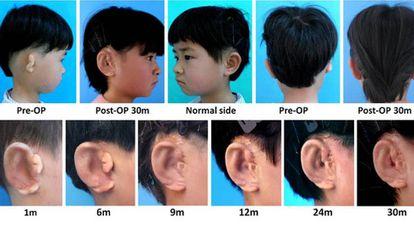 Imágenes de uno de los pacientes tratado con la nueva técnica para implantar una nueva oreja.