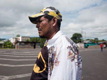 Seguidores del presidente han atacado a opositores con un compuesto químico corrosivo en Boaco en un nuevo brote de violencia en Nicaragua