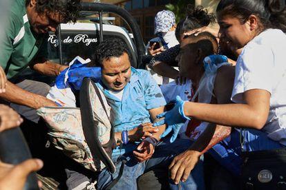 Un herido durante la represión en Nicaragua.