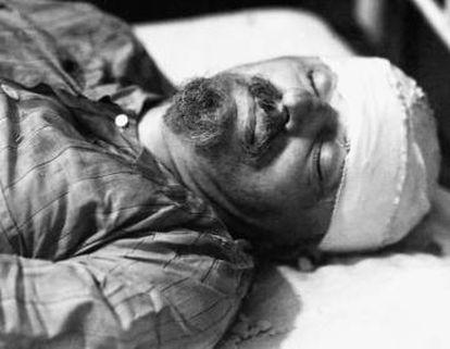 Trotski falleció en el hospital al día siguiente del ataque.