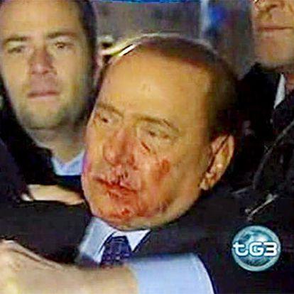 Captura de imagen sacada de la televisión Raitre en la que se ve al primer ministro italiano, Silvio Berlusconi, sangrando tras recibir una agresión a la salida de un mitin celebrado en Milán.
