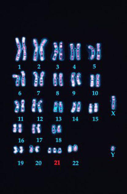 Cromosomas de un varón con síndrome de Down donde se ven las tres copias del 21.