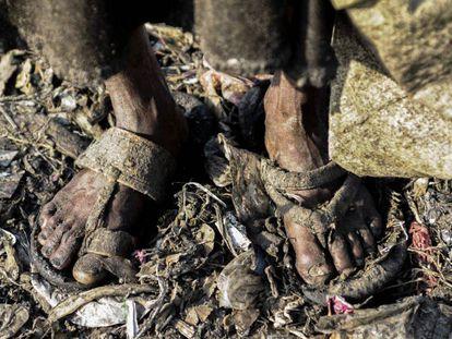 Las condiciones insalubres son culpables de buena parte de las infecciones. En la imagen, un vertedero de Bangladesh.