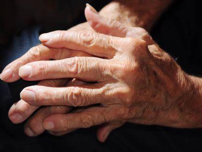 Las manos con artrosis de un hombre.