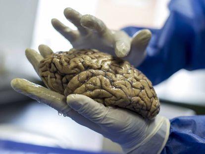 Un cerebro del Grupo de Neurociencias de la Universidade de Antioquia.