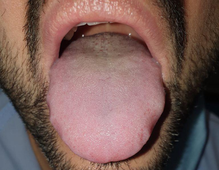La lengua agrandada y con las marcas de los dientes en los laterales de un paciente con covid.