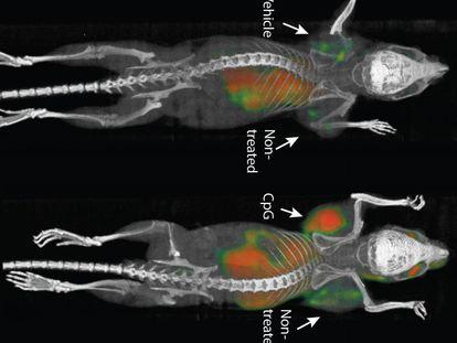 Los investigadores inyectaban los agentes dentro de tumores localizados, pero los efectos podían llegar a todo el cuerpo