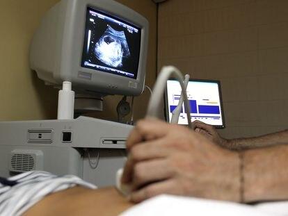 Un sanitario realiza una ecografía a una mujer embarazada.