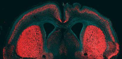 Córtex cerebral de ratón con el gen humano activo en el hemisferio derecho.