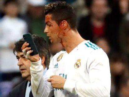 Los blancos remontan en el Bernabéu por primera vez en el curso y arrollan a un Deportivo en los huesos con dobletes goleadores de Nacho, Bale y CR, y una sobresaliente actuación coral