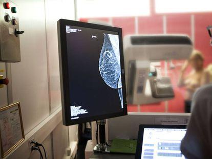 Mammography screening.
