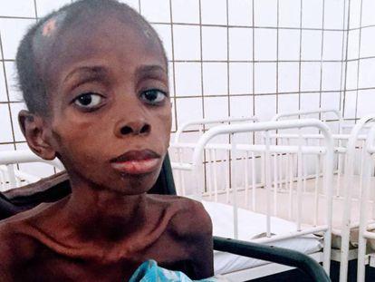 Marcos, 10 años, 13 kilos