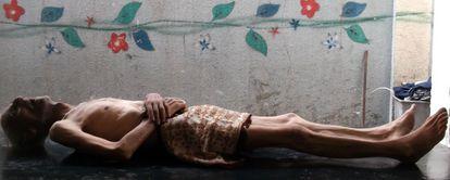 El cuerpo sin vida de Awad al-Saidi, que falleció por hambre, según residentes de Yarmuk en Damasco.