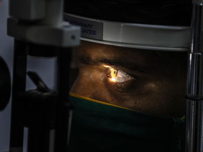 Un hombre se somete a un control ante la sospecha de estar infectado con mucormicosis, en un hospital de Bombay, India.