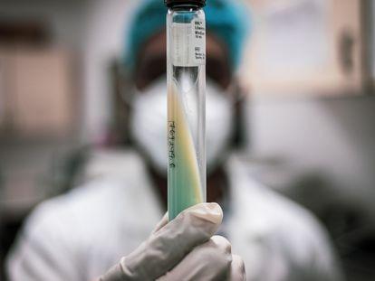 Muestra de tuberculosis que sujeta un técnico de laboratorio del Centro de Investigación en Salud de Manhiça, en Mozambique.