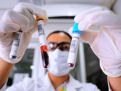Una bióloga revisa dos muestras de sangre antes de analizarlas en Atlacomulco, México.