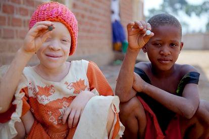 <span >Albinismo: conjunto de condiciones heredadas que se identifican en la persona por la falta de coloración en el pelo, piel y ojos, producto de la herencia de un gen con defecto en la producción de melanina. Y, cuando deberías ser negra, no veas lo que se nota.</span>