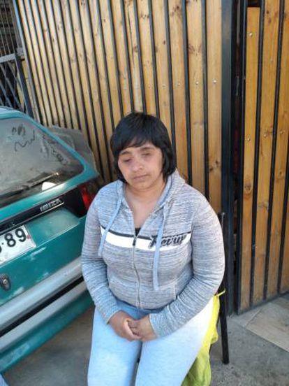 Fabiolla Campillai refleja en su cara las lesiones que un carabinero le produjo por el disparo de una bomba lacrimógena. Ha perdido la visión en ambos ojos.
