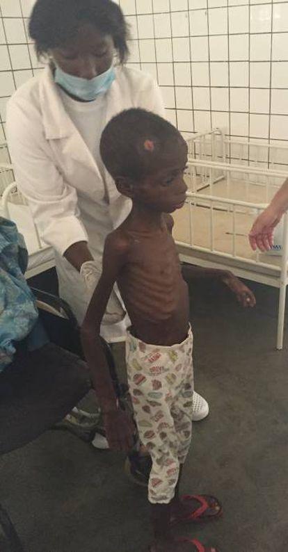 Marcos, se levanta para demostrar que se encuentra mejor en una de las salas de desnutridos del hospital, en Cubal (Angola).