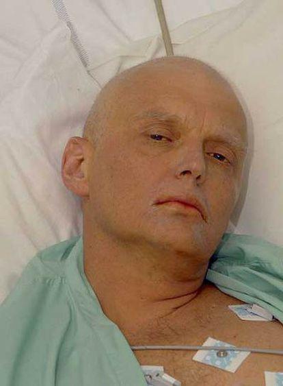 El espía Alexander Litvinenko.