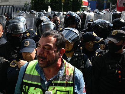 Enrique Medrano, portavoz del gremio de gaseros mexicanos, sangra tras un enfrentamiento con la policía durante una protesta este lunes en la sede de la Secretaría de Energía, en Ciudad de México.