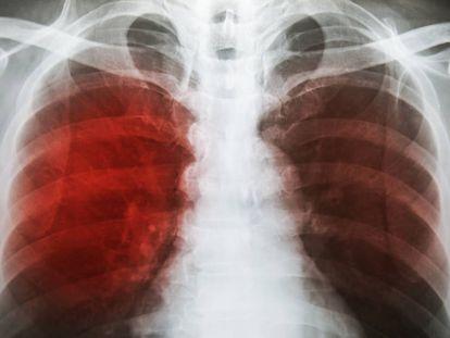 Radiografía de tórax muestra infiltración alveolar en ambos pulmones debido a infección por microbacterias tuberculosas.