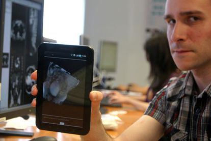 Imagen médica en 3D en una tableta, ayer en la presentación del proyecto de Vicomtech-IK4.