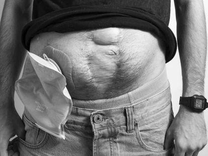 Ostomizados: vivir con una bolsa pegada a la tripa