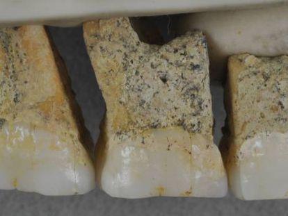 Dientes superiores del CCH6 individual, el espécimen tipo de la nueva especie Homo luzonensis.