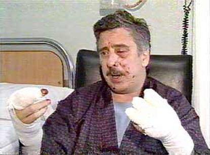 Gorka Landaburu, en el hospital, tras recibir un paquete bomba enviado por ETA en 2001.