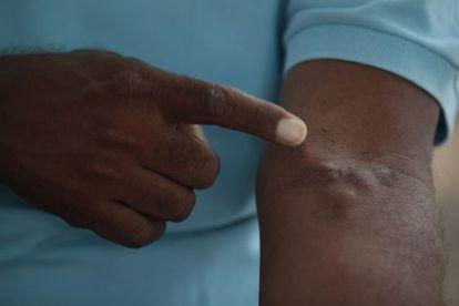Marcas causadas por la enfermedad.