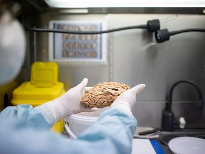 Un investigador sostiene uno de los cerebros del banco de la fundación Cien el pasado 22 de junio.