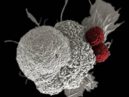 Célula de un cáncer de cabeza y cuello, atacada por dos glóbulos blancos.