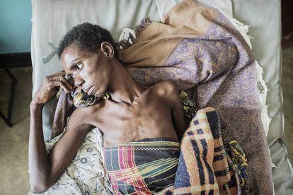 Una paciente seropositiva de Médicos Sin Fronteras (MSF). En 2016, había 36,7 millones de personas con VIH en el mundo, según Onusida.