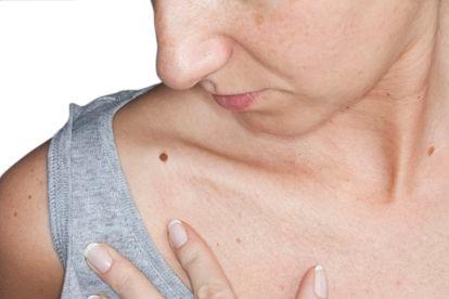 Entre los factores de riesgo que inciden en el melanoma los hay ambientales, como el sol, e individuales, como el color de la piel.