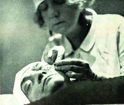 La cirujana, en una operación para corregir las ojeras.