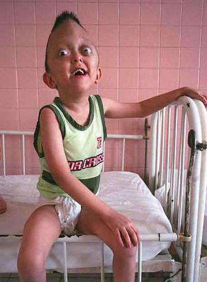 Niños asistidos en el Poblado de la Paz para víctimas del <i>agente naranja</i>